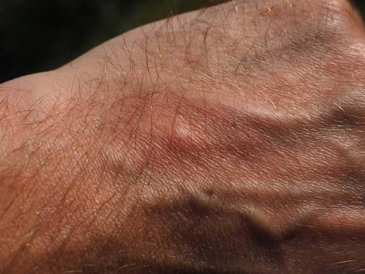 Morso di zanzara