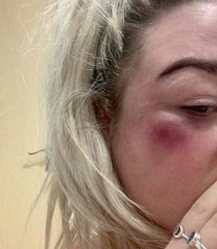 Rhianna Gardner la ragazza che ha combattuto per salvare il suo cane dal rapimento (Foto Facebook)
